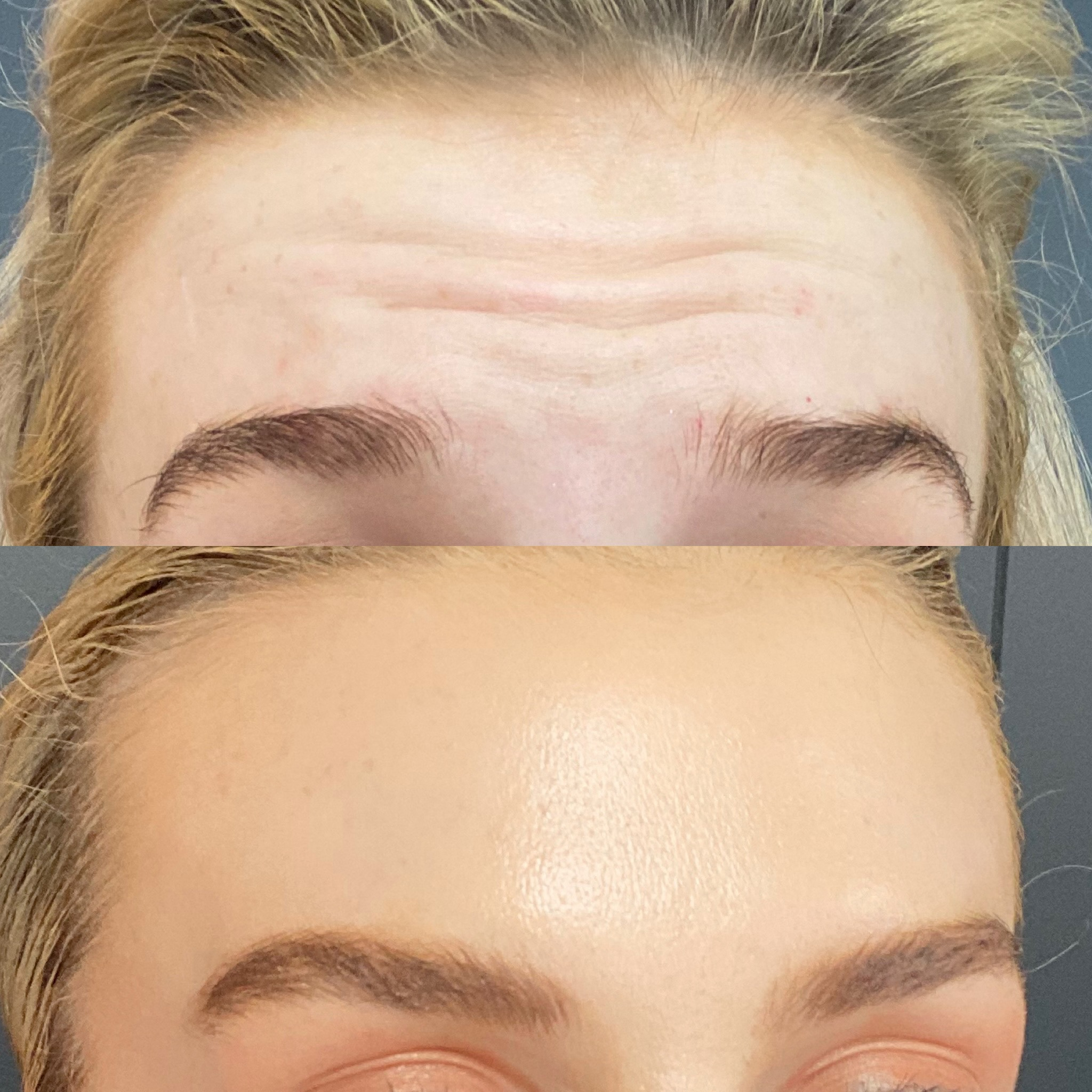 Anti Wrinkle Forehead - Anti Wrinkle Injections - Elinay Cosmetic Surgery Centre Brisbane QLD