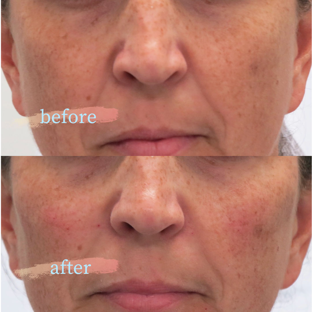 Cheek Filler - Dermal Fillers - Elinay Cosmetic Surgery Centre Brisane QLD