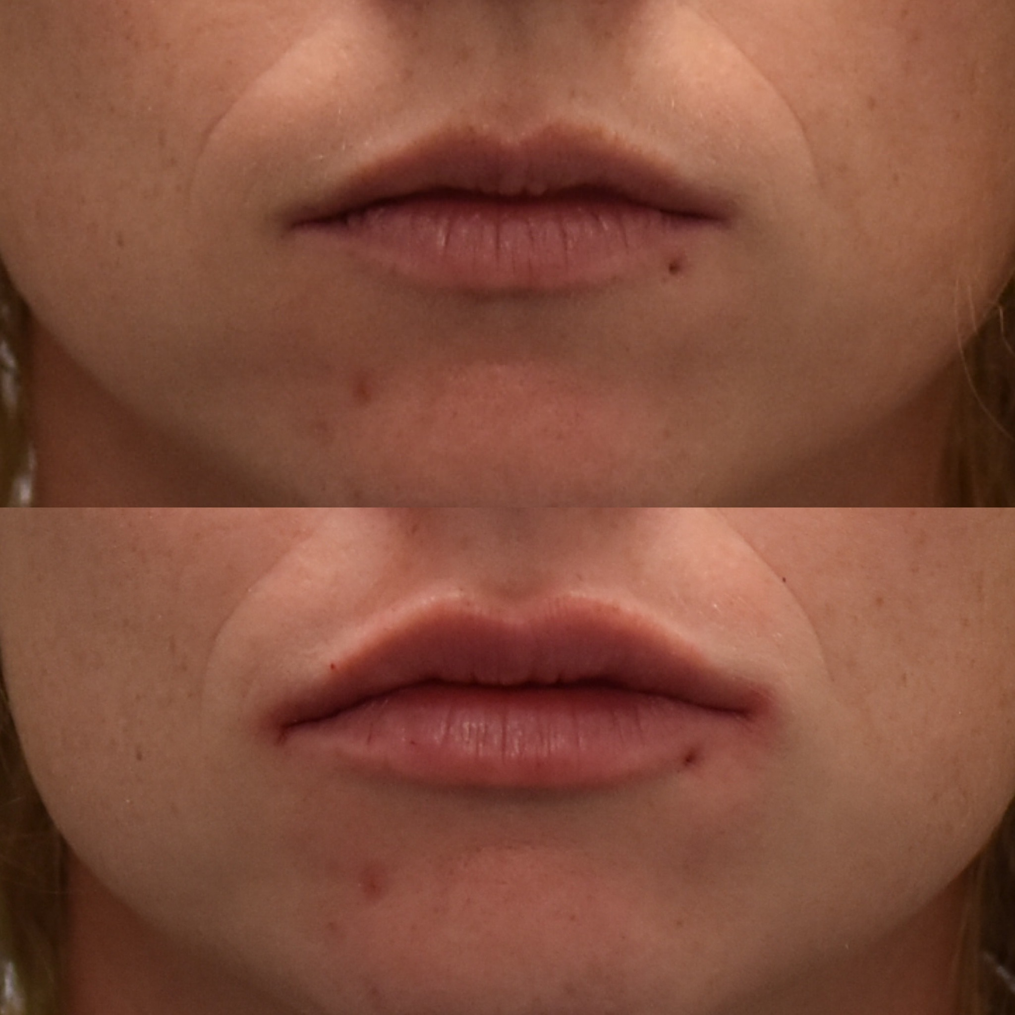 Lips 1- Lip Enhancement - Elinay Cosmetic Surgery Brisbane QLD
